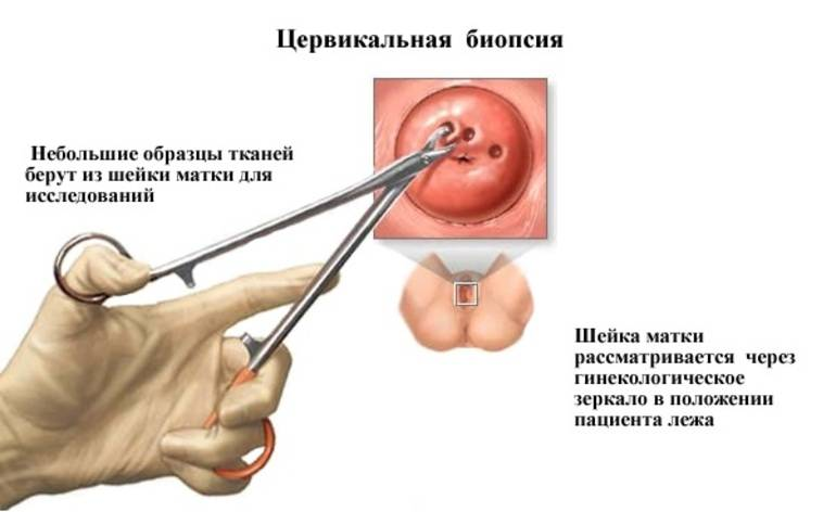 Воспаление шейки матки — причины возникновения и лечение