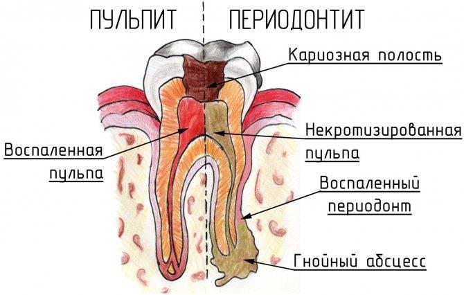 Почему под коронкой сгнил зуб и что нужно делать в такой ситуации?