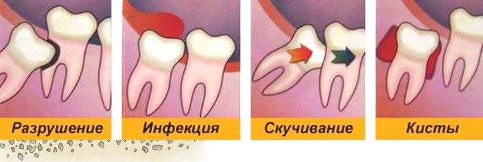 Как действовать, если остался корень после удаления зуба?