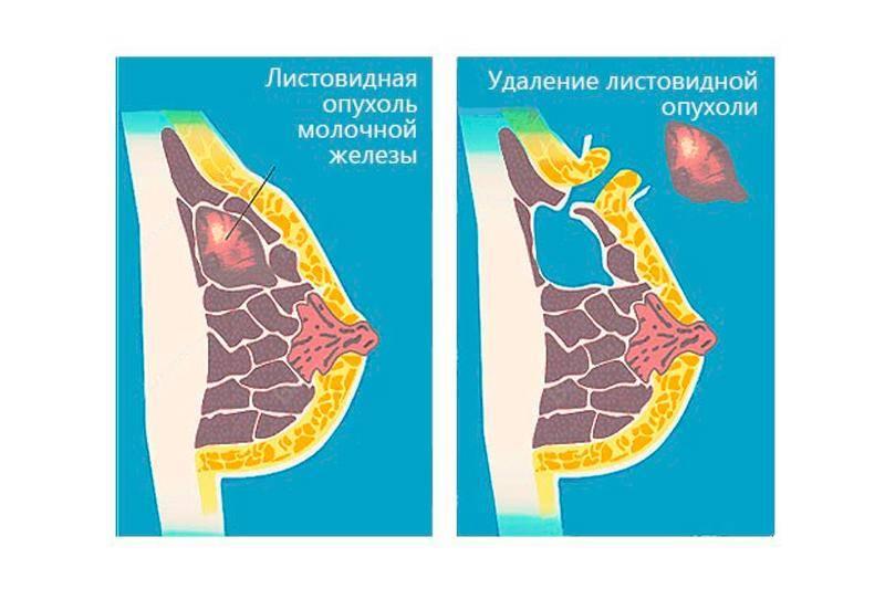 Фиброаденома молочной железы
