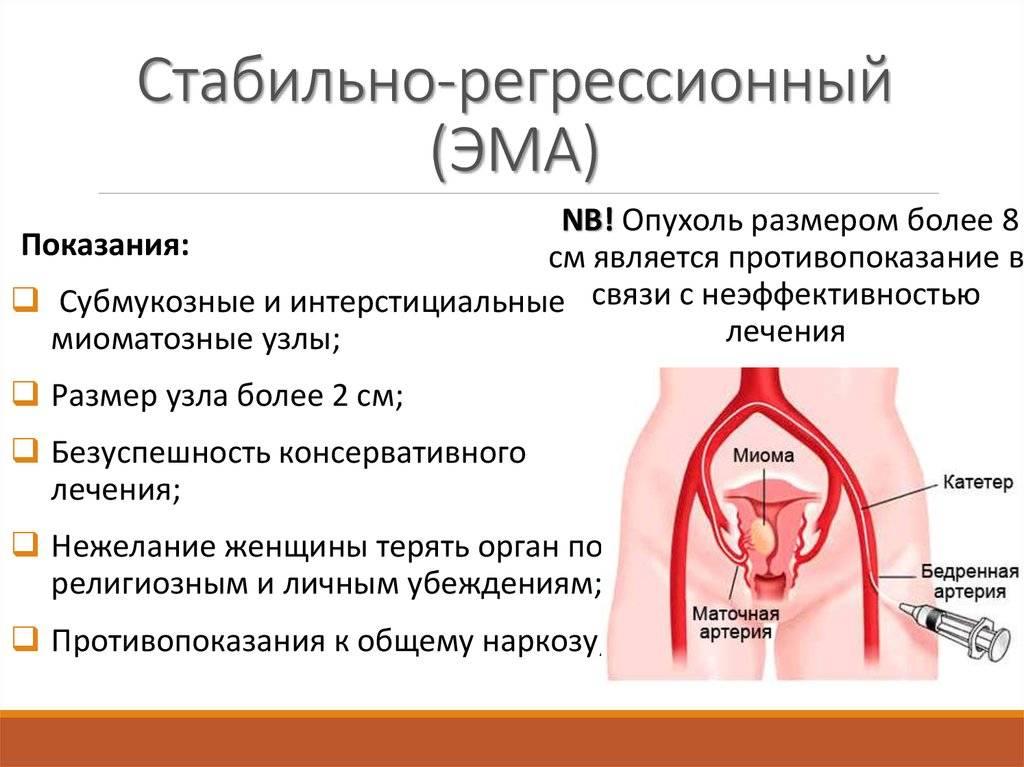 Метод эмболизации маточных артерий (эма)