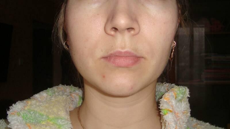 Что делать, если после удаления зуба болит и опухает щека, когда спадет отек и как его снять?