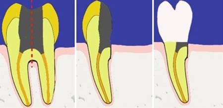 Гемисекция – это спасение зуба или неоправданные затраты?