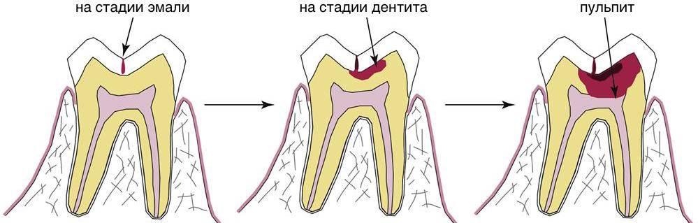 Как выявить и как лечить пульпит молочных зубов?