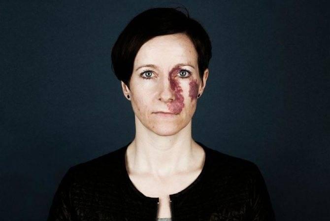 Как убрать родимые пятна. виды родимых пятен на лице и методы их удаления. что представляет собой процедура
