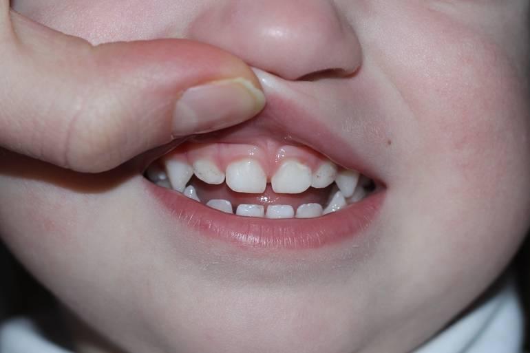 В каком возрасте меняются зубы у детей: порядок и сроки протекания процесса, рекомендации по уходу за полостью рта