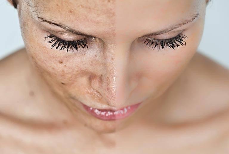 Ваши секреты красоты. как замедлить старение лица и предотвратить появление морщин