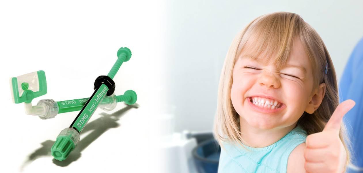 Технология icon — безболезненное лечение кариеса без сверления