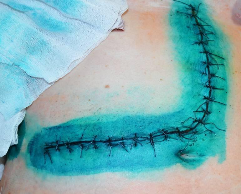 Как обрабатывать рану после снятия швов: обзор мазей и растворов