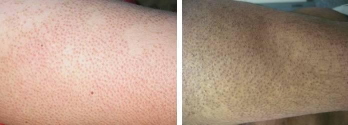 Гусиная кожа — есть ли повод для беспокойства и как от нее избавиться