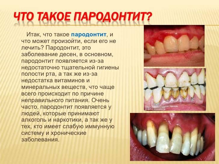 О чем говорит неприятный привкус во рту?