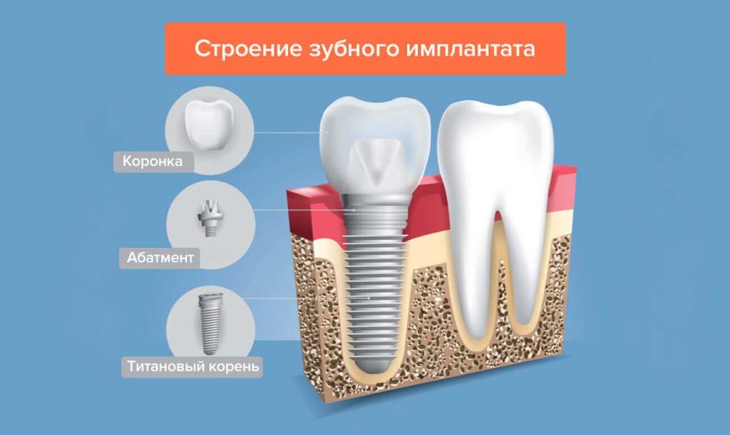 Как приживаются зубные импланты?
