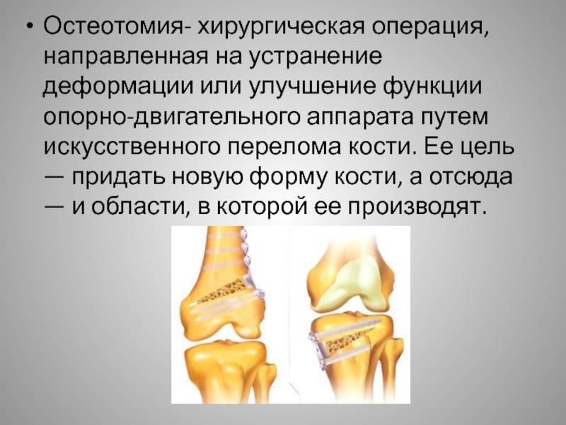 Риносептопластика: суть и виды операции, когда показана, ход, восстановление после