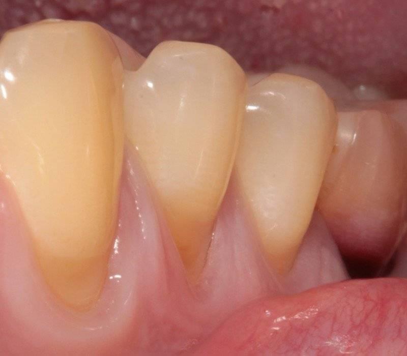 Клиновидный дефект зубов: симптомы и лечение