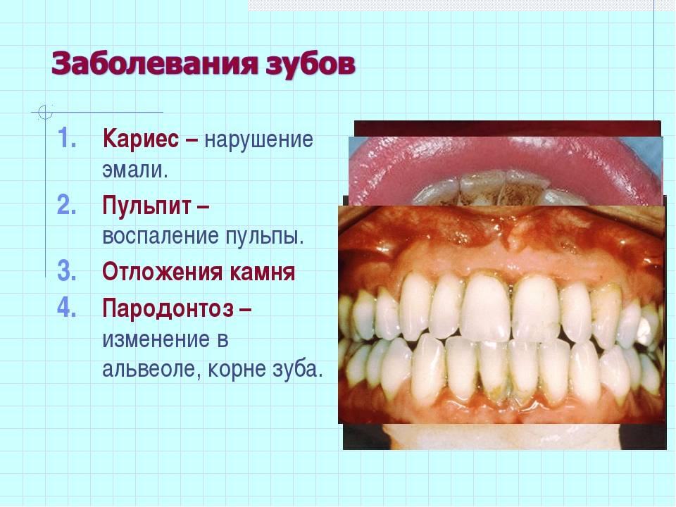 Болезни зубов: виды, названия, причины и лечение зубных заболеваний