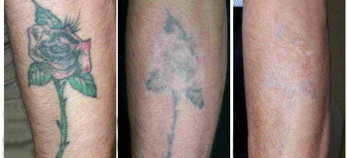 Удаление тату лазером – цены и противопоказания