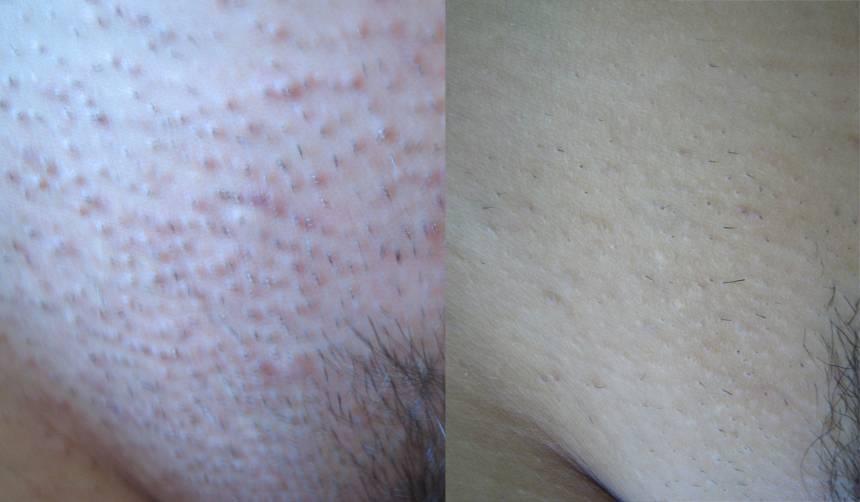 Причины и профилактика аллергии на прокладки
