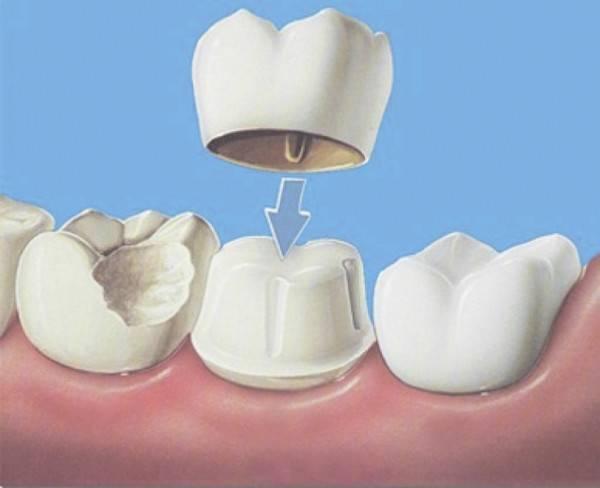Почему шатается протез на зубах и чем это грозит?