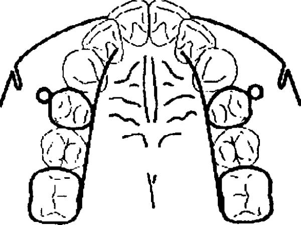 Несъёмный аппарат хаас — прорыв в детской ортодонтии