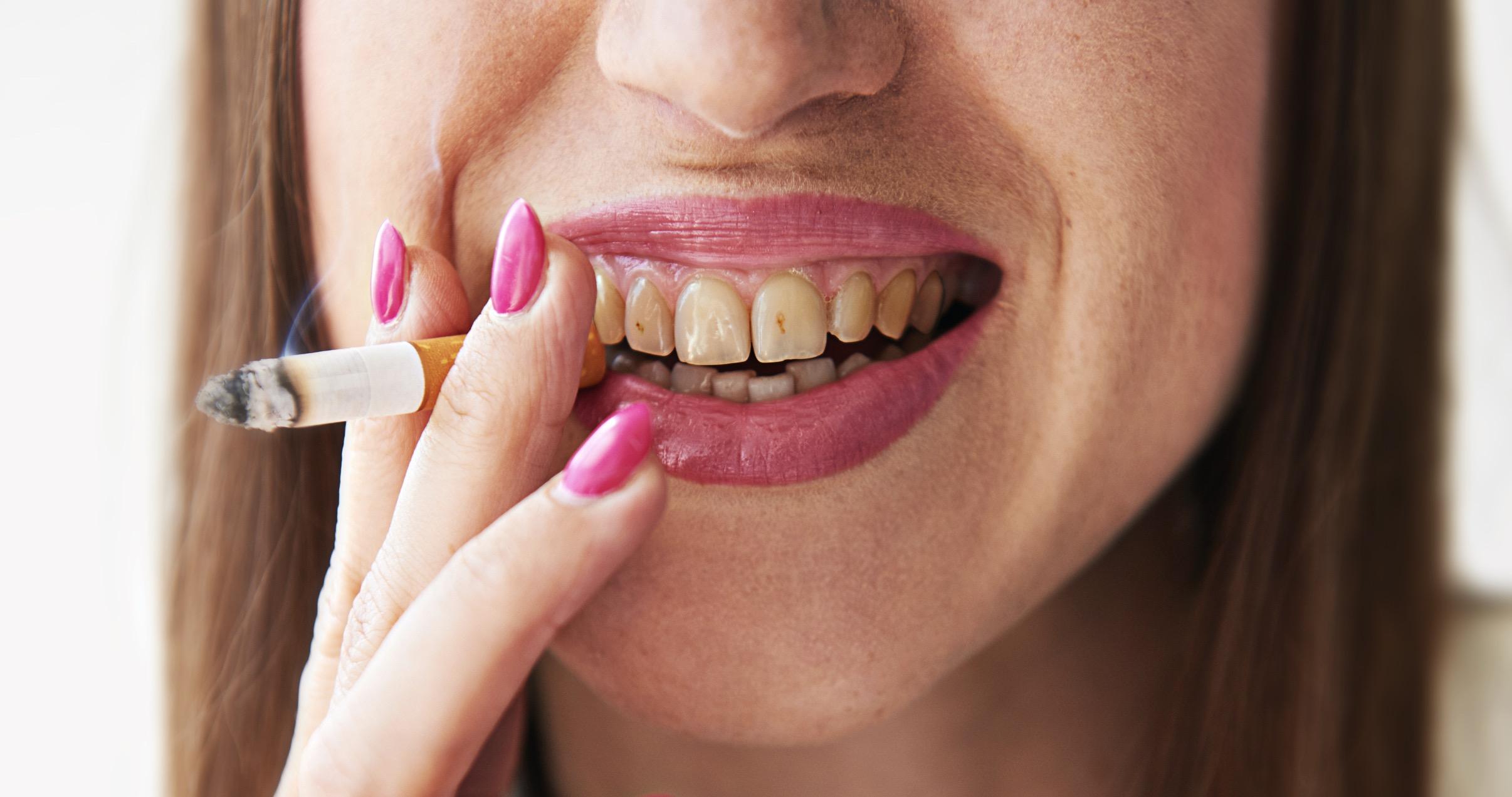 Может ли быть желтый налет на языке от курения