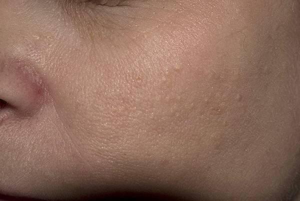 Под глазами белые пупырышки — милиумы на фото