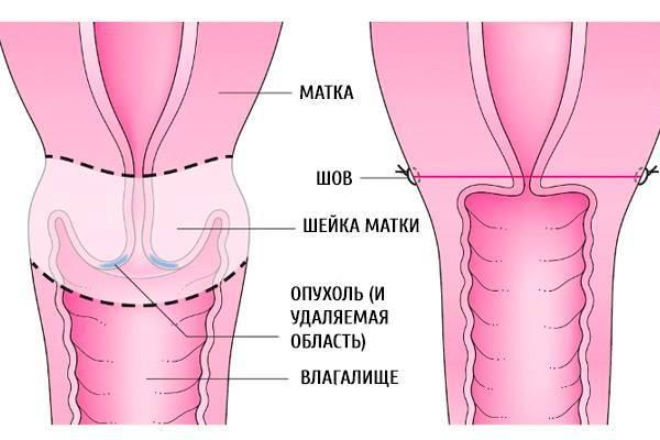 Пластика на шейки матки: назначение и проведение операции