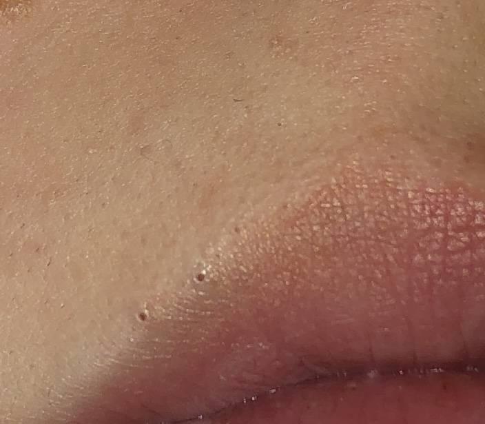 Причины появления темных (синих и черных) пятен на губе и в ее уголках: что это и как избавиться от проблемы?