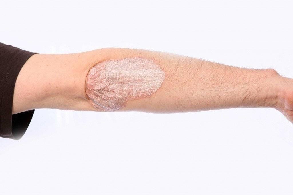 Что делать если шелушится загрубевшая кожа на коленях и локтях