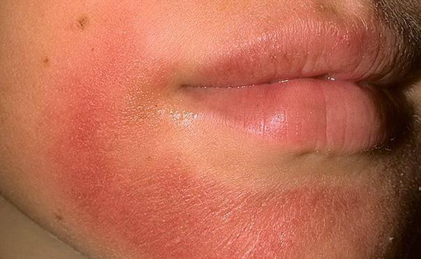 Кожа на подбородке краснеет и шелушится – в чем причины и как лечить