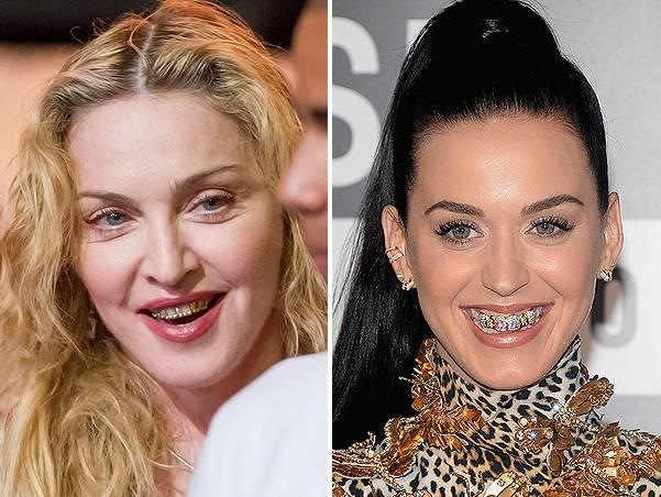 Звезды в брекетах: кто из звезд и знаменитостей носил, фото до и после, российские звезды, которые носили брекеты
