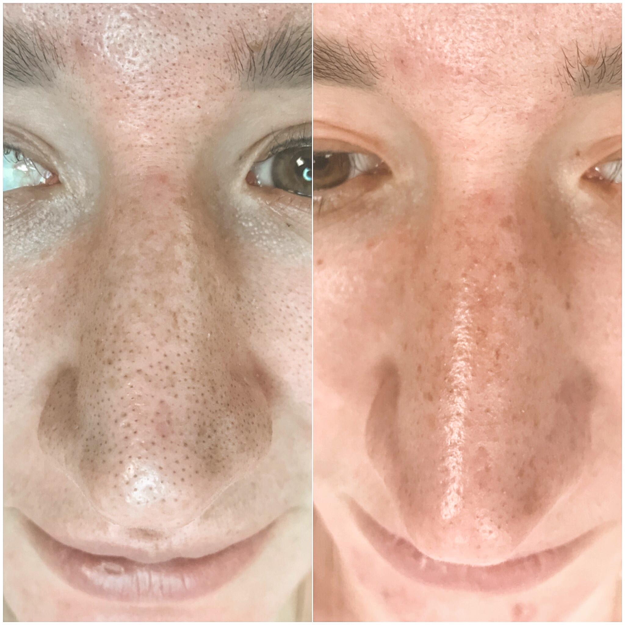 Атравматическая чистка лица: суть процедуры, отзывы
