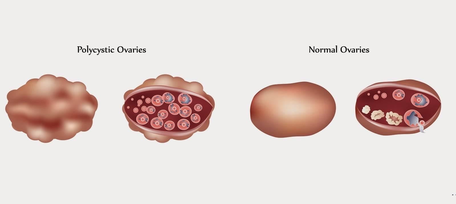 Мультифолликулярные яичники: что это, причины и лечение.