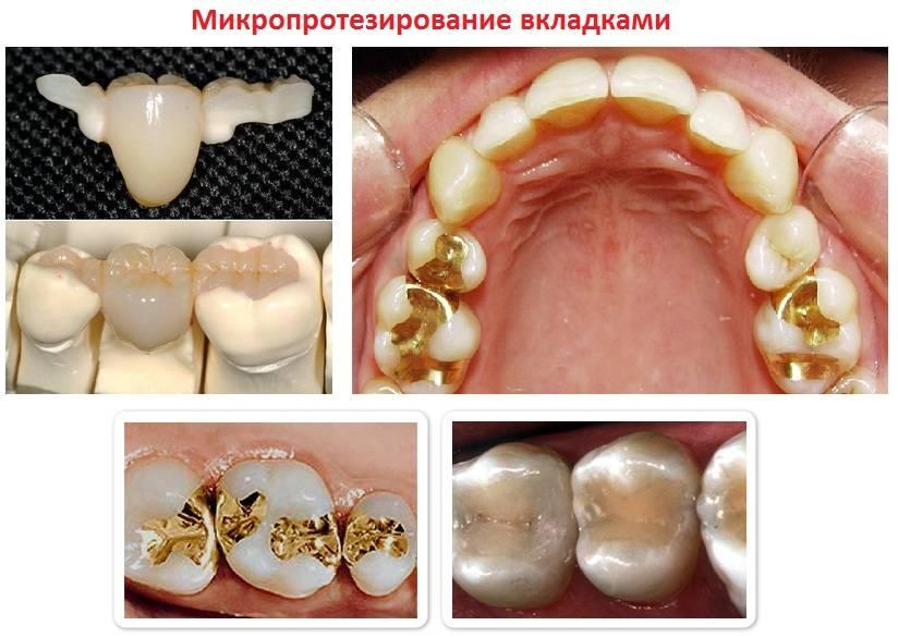 Можно ли ставить брекеты на пломбированные зубы. можно ли ставить брекеты на импланты. зачем нужны надкусочные пломбы