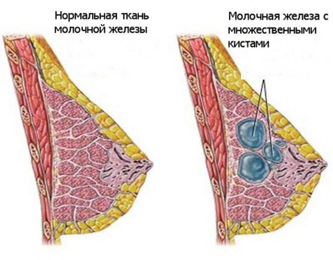 Фиброз молочной железы: виды и симптомы, диагностика, лечение