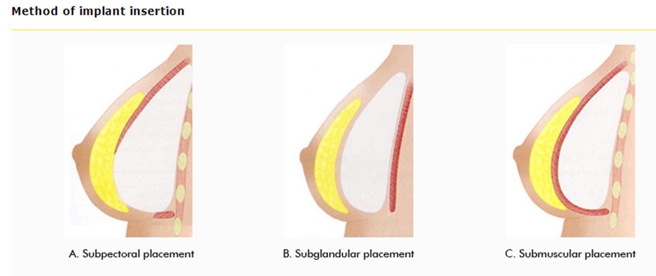 Грудные имплантанты: виды, преимущества силиконовой груди