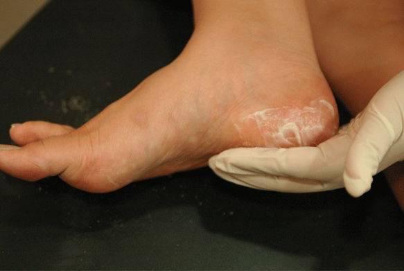 Сухая кожа на ногах: симптомы, причины, лечение