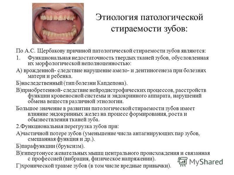 Классификация и симптомы патологической стираемости зубов — лечение и профилактика повышенного стачивания