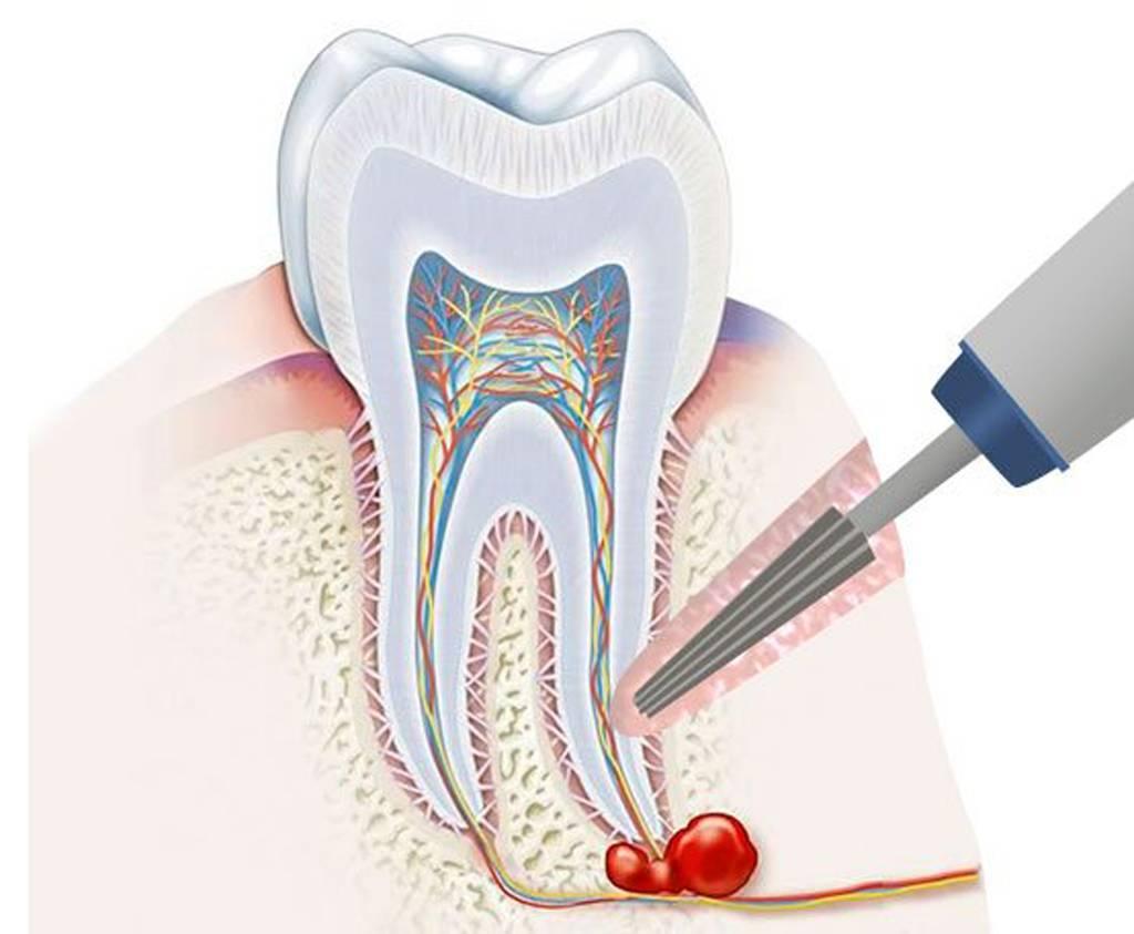 Киста зуба - лечение и удаление в клинике новадент