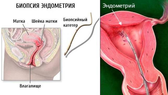 Как и зачем проводится анализ аспирата из полости матки