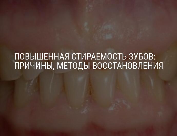 Стачиваются передние зубы что делать