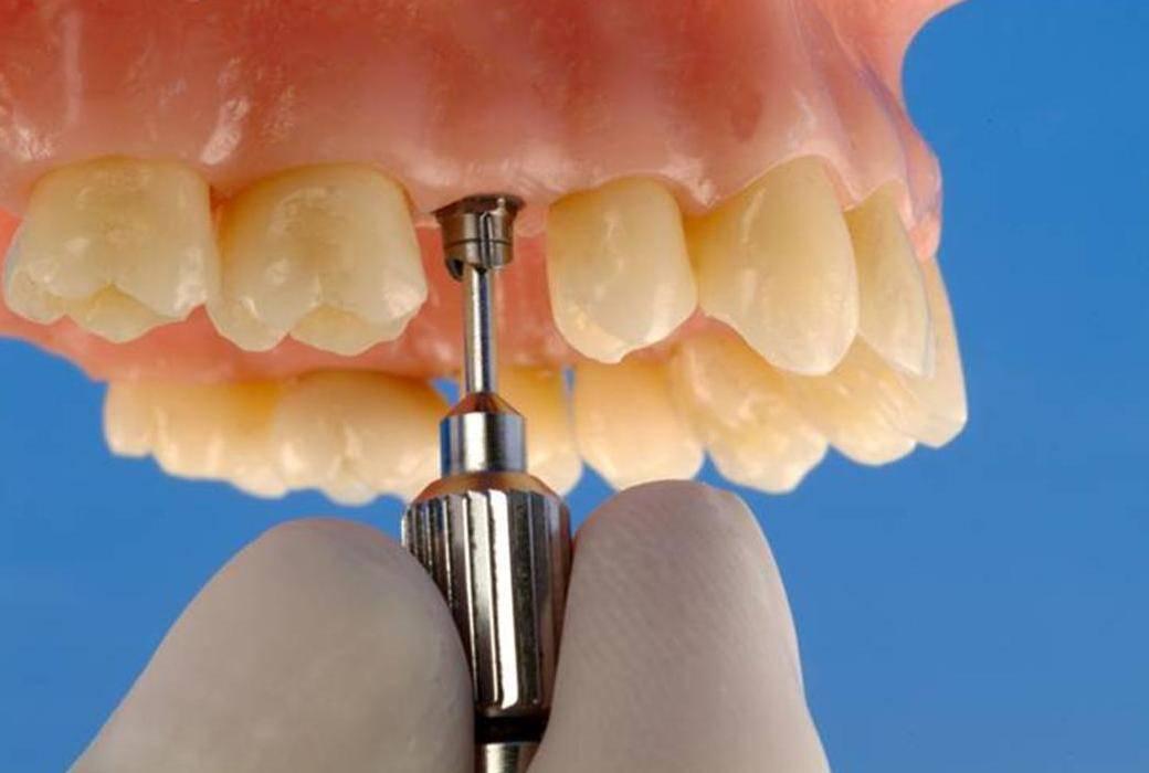 Имплантация зубов присахарном диабете