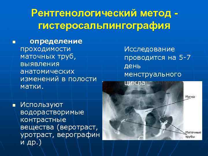 Как проверяют проходимость маточных труб. преимущества и недостатки методов