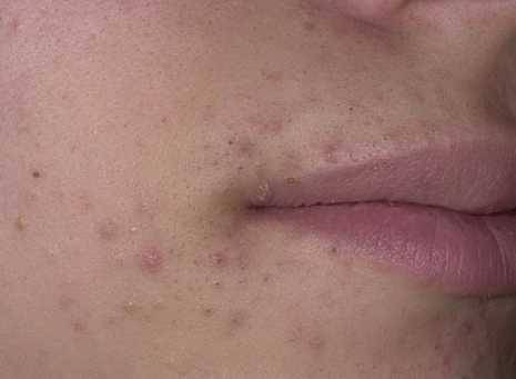 Причины появления черных точек на губе и как от них избавиться