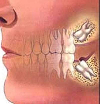 Зубная боль отдает в голову: висок, челюсть, ухо, глаз