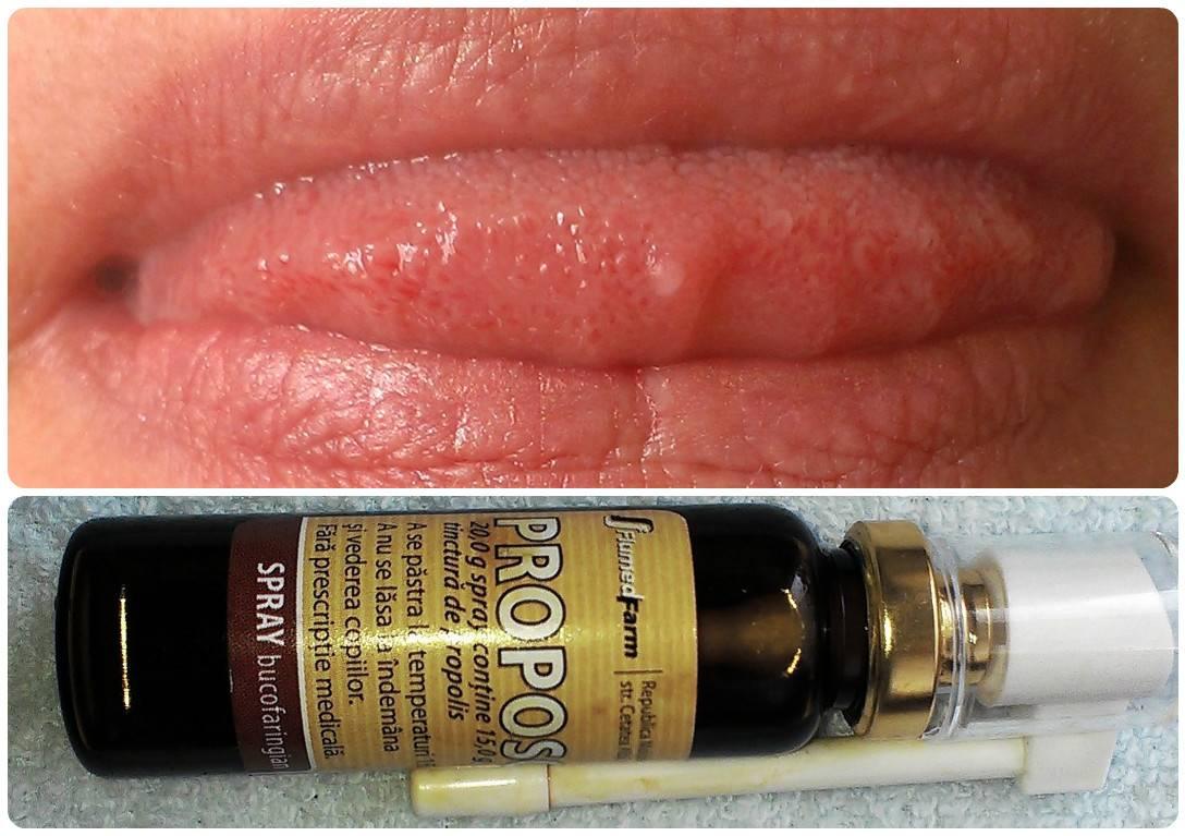 Симптомы папилломы и рака на языке, а также способы лечения