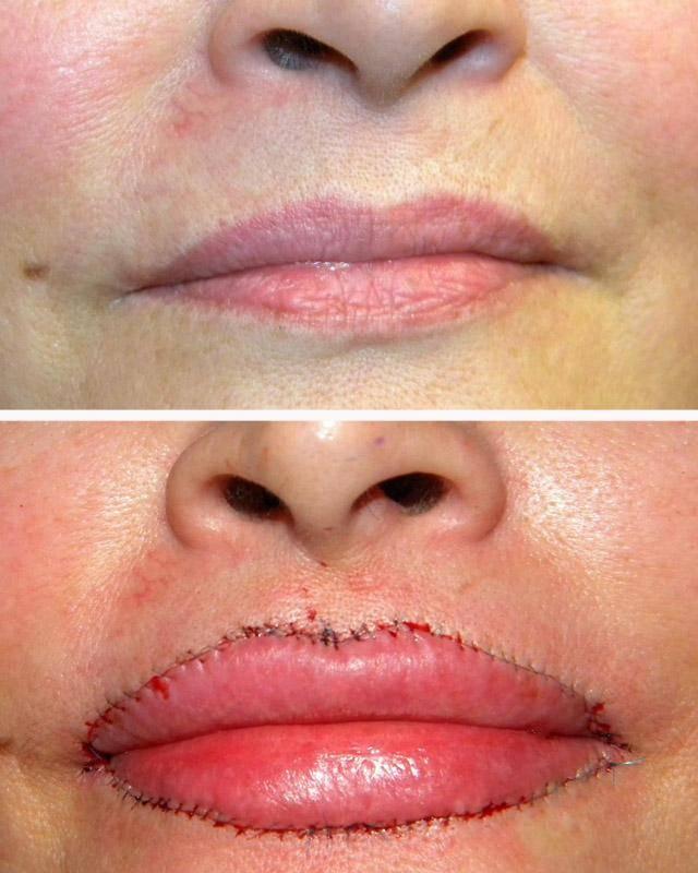 Как действует ботокс для лица — возможные отрицательные последствия и фото до и после процедуры