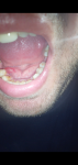 Шишки, прыщи и другие неровности во рту