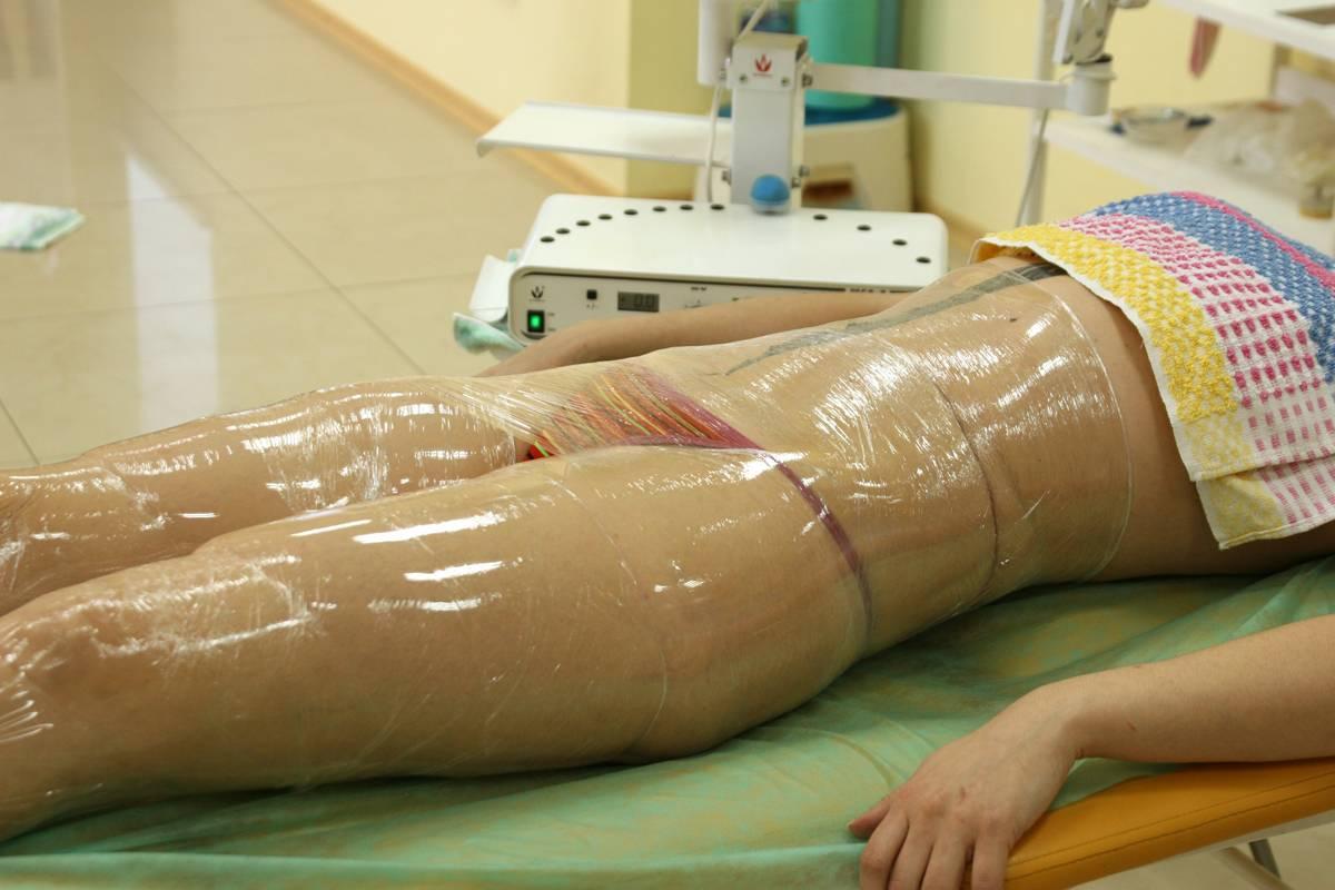 Как убрать жир с внутренней части бедра, эффективные и проверенные способы
