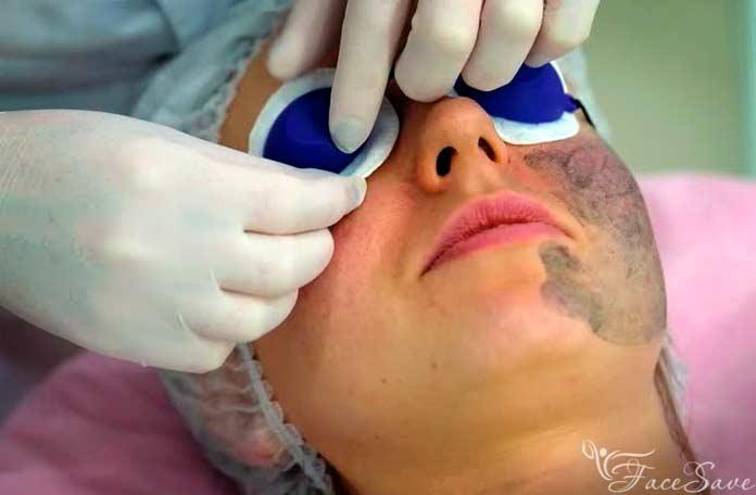 Лазерный карбоновый пилинг: преимущества и недостатки, мнение косметологов и пациентов