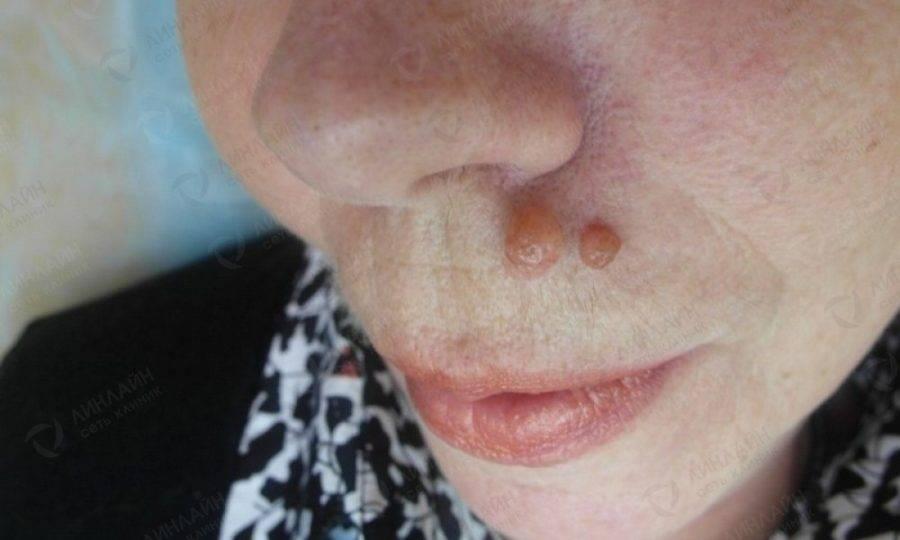 Знаете ли вы, как убрать бородавку на лице? фото и особенности лечения плоских наростов на носу, веках глаз